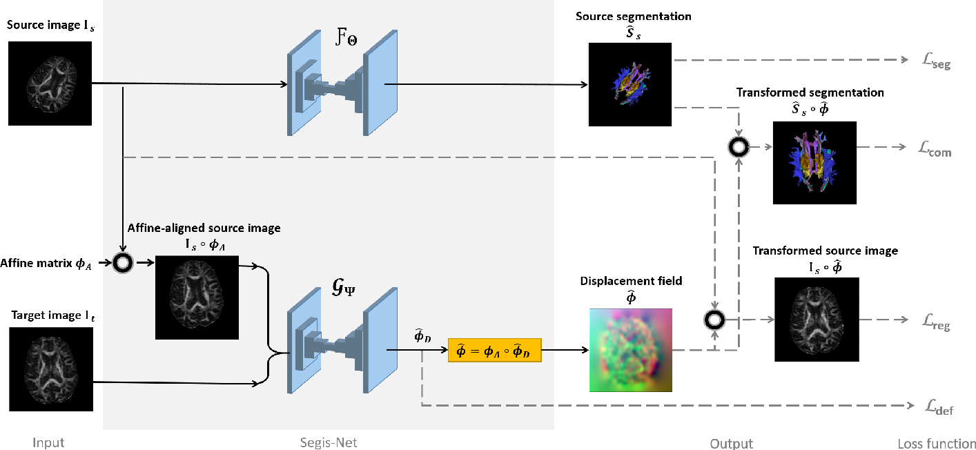 Figure 1 for Longitudinal diffusion MRI analysis using Segis-Net: a single-step deep-learning framework for simultaneous segmentation and registration