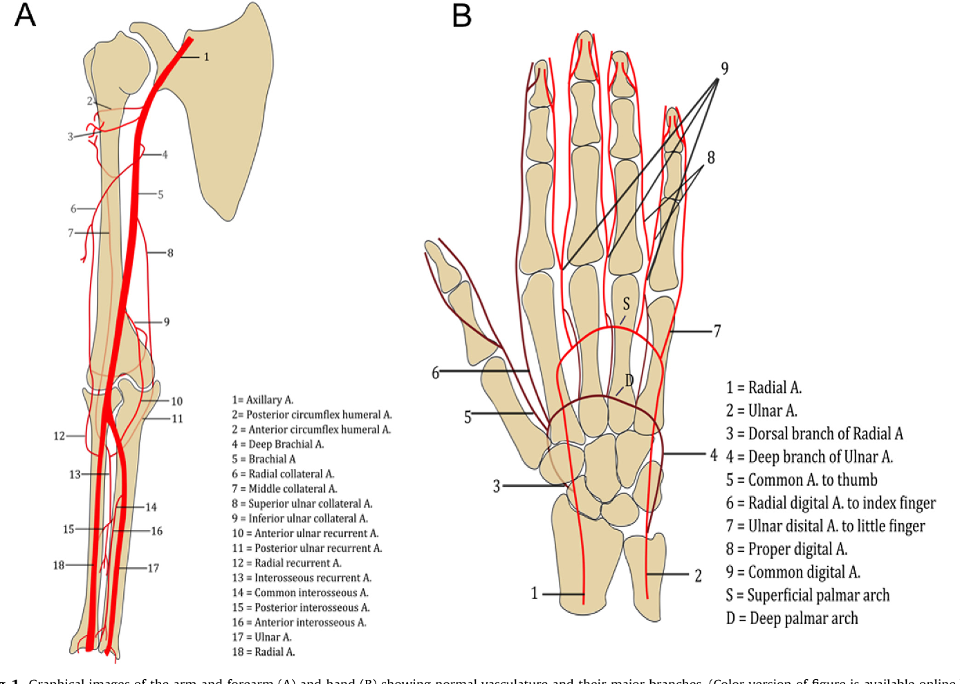 Upper Extremity Runoff: Pearls and Pitfalls in Computed Tomography ...