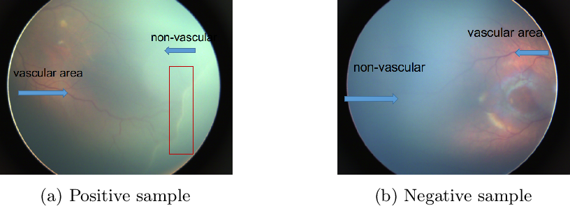Figure 1 for Early Detection of Retinopathy of Prematurity (ROP) in Retinal Fundus Images Via Convolutional Neural Networks