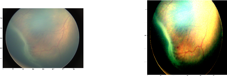 Figure 3 for Early Detection of Retinopathy of Prematurity (ROP) in Retinal Fundus Images Via Convolutional Neural Networks