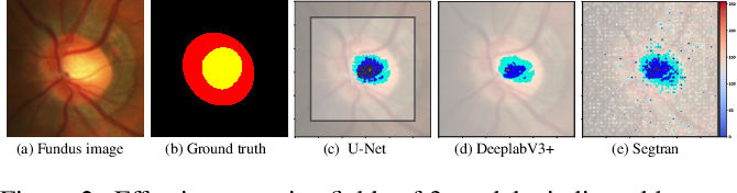 Figure 3 for Medical Image Segmentation Using Squeeze-and-Expansion Transformers