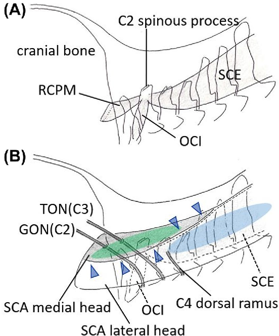 Figure 2 from The tendinous septum of the semispinalis