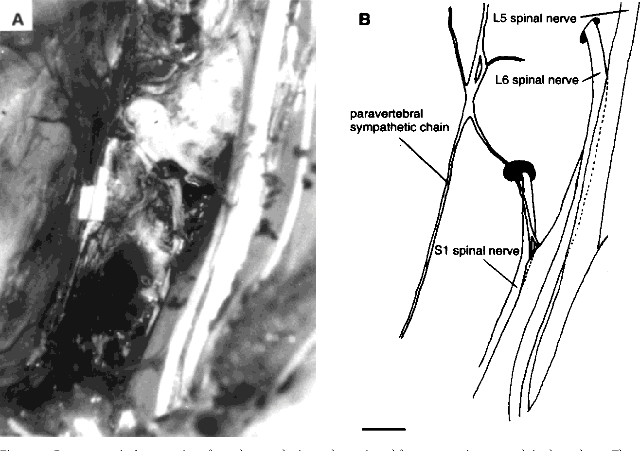 Evidence Of Sympathetic Fibers In The Male Rat Pelvic Nerve By Gross