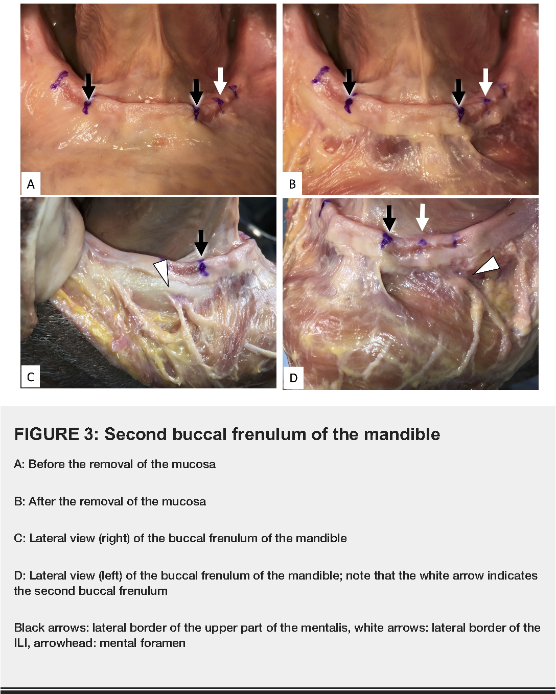 Clinical Anatomy of the Frenulum of the Oral Vestibule - Semantic ...