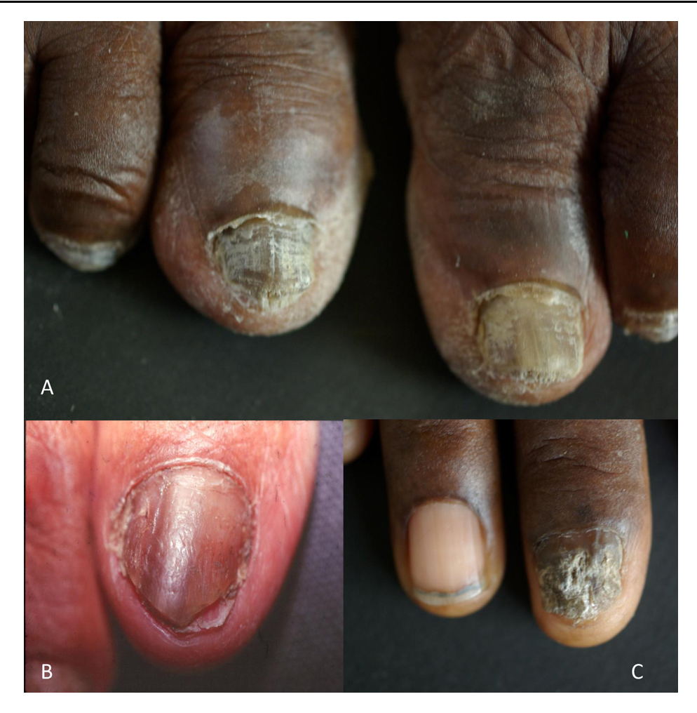 Figure 3 from Scytalidium and scytalidiosis: what\'s new in 2012 ...