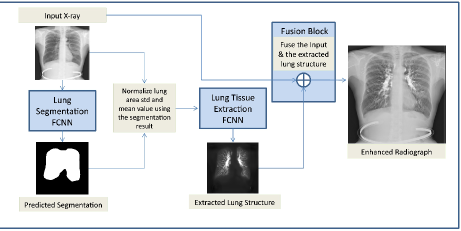Figure 1 for Lung Structures Enhancement in Chest Radiographs via CT based FCNN Training