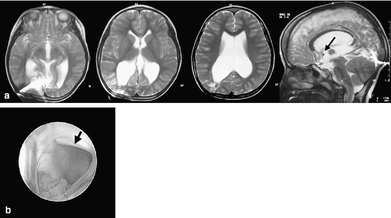 Ventricular anatomy of hydrocephalus associated with myeloschisis ...