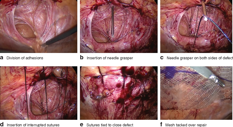 Meta-analysis of closure of the fascial defect during laparoscopic ...