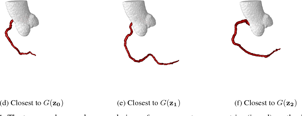 Figure 4 for Blood Vessel Geometry Synthesis using Generative Adversarial Networks