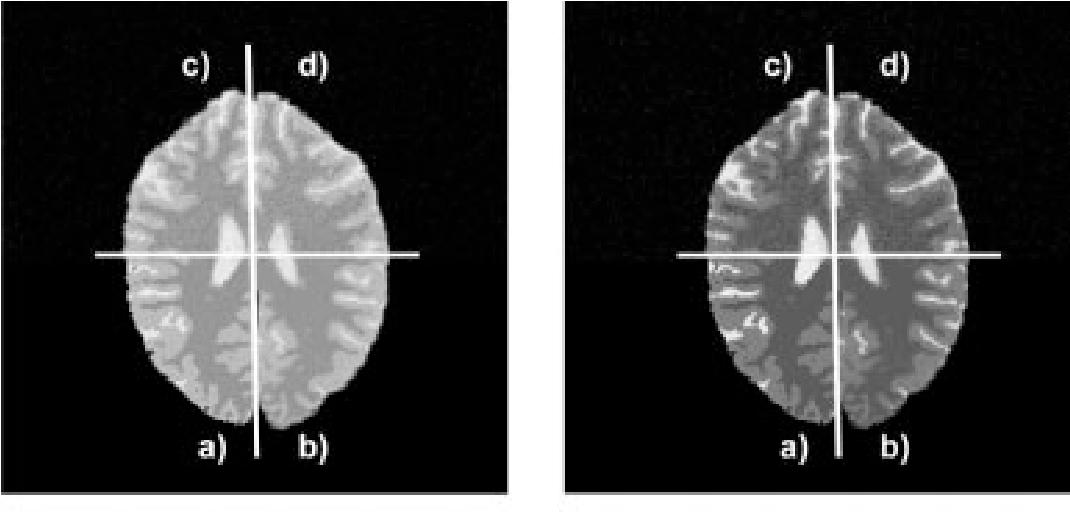 Figure 1 for Markov Random Field Segmentation of Brain MR Images