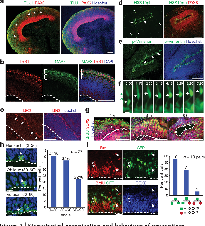 Neurotoxicity Predicted By Organoids >> Figure 3 From Cerebral Organoids Model Human Brain Development And