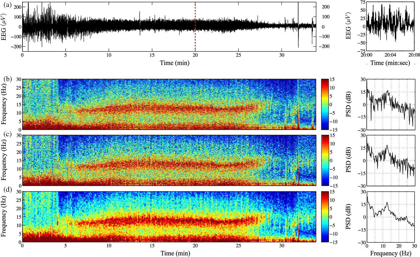 Figure 7 from A Review of Multitaper Spectral Analysis - Semantic