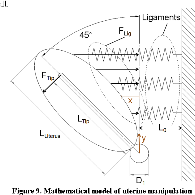 Figure 9 From A Novel Uterine Manipulator Incorporating Non Local