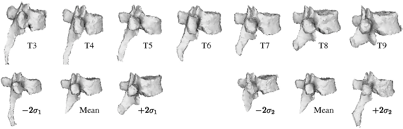 Figure 4 From Statistical Shape Influence In Geodesic Active