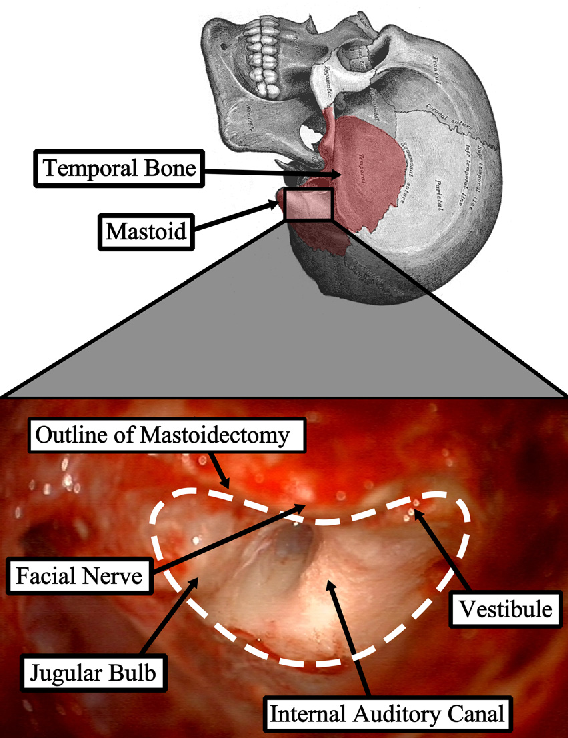 Figure 1 From A Compact Bone Attached Robot For Mastoidectomy