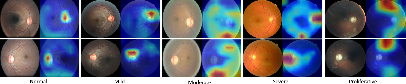 Figure 3 for Two Eyes Are Better Than One: Exploiting Binocular Correlation for Diabetic Retinopathy Severity Grading