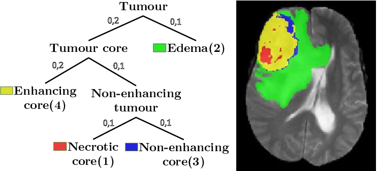 Figure 1 for Generalised Wasserstein Dice Score for Imbalanced Multi-class Segmentation using Holistic Convolutional Networks