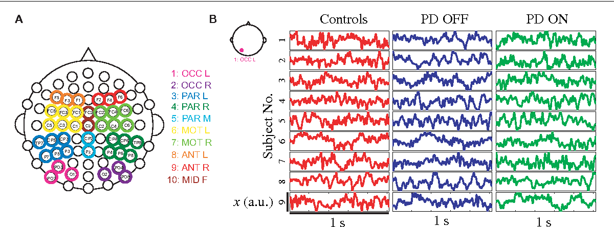 Figure 1 from Non-Linear Dynamical Analysis of EEG Time Series