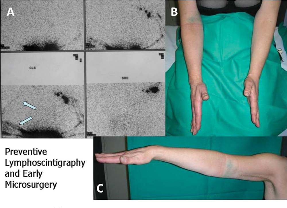 Figure 3 from Prevention of lymphatic injuries in surgery