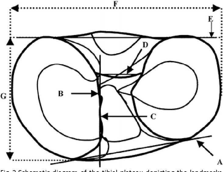 The Attachments Of The Anteromedial And Posterolateral Fibre Bundles