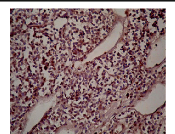 Fig. 2 Nuclear staining of survivin on lymph node section (×400)