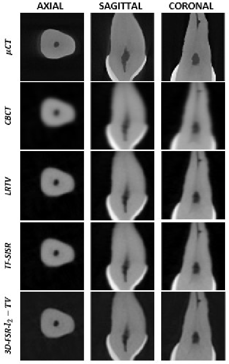 Figure 2 for A Novel Fast 3D Single Image Super-Resolution Algorithm