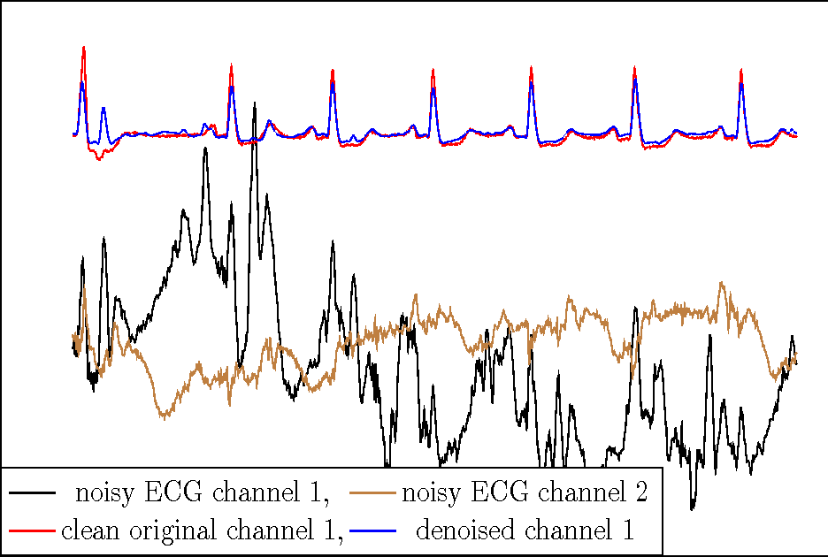 Figure 1 from A Neural Network Approach to ECG Denoising - Semantic