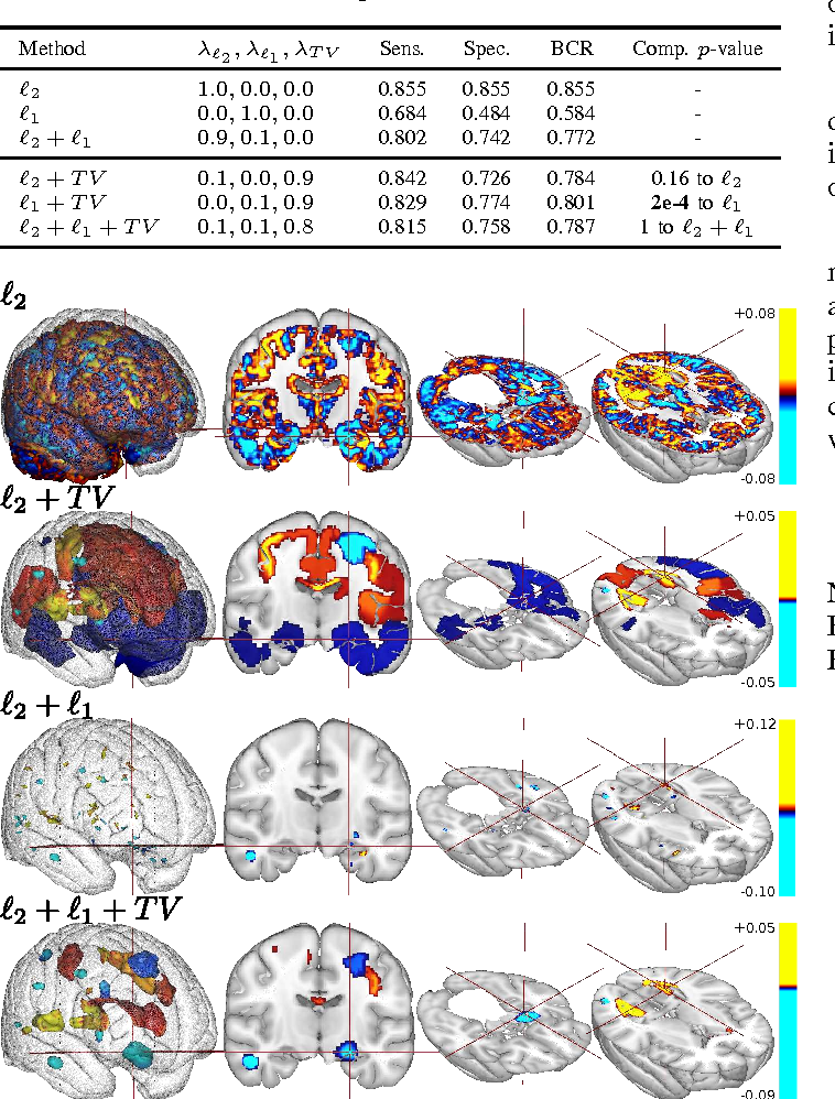Figure 1 for Predictive support recovery with TV-Elastic Net penalty and logistic regression: an application to structural MRI