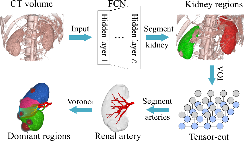 Figure 1 for Precise Estimation of Renal Vascular Dominant Regions Using Spatially Aware Fully Convolutional Networks, Tensor-Cut and Voronoi Diagrams