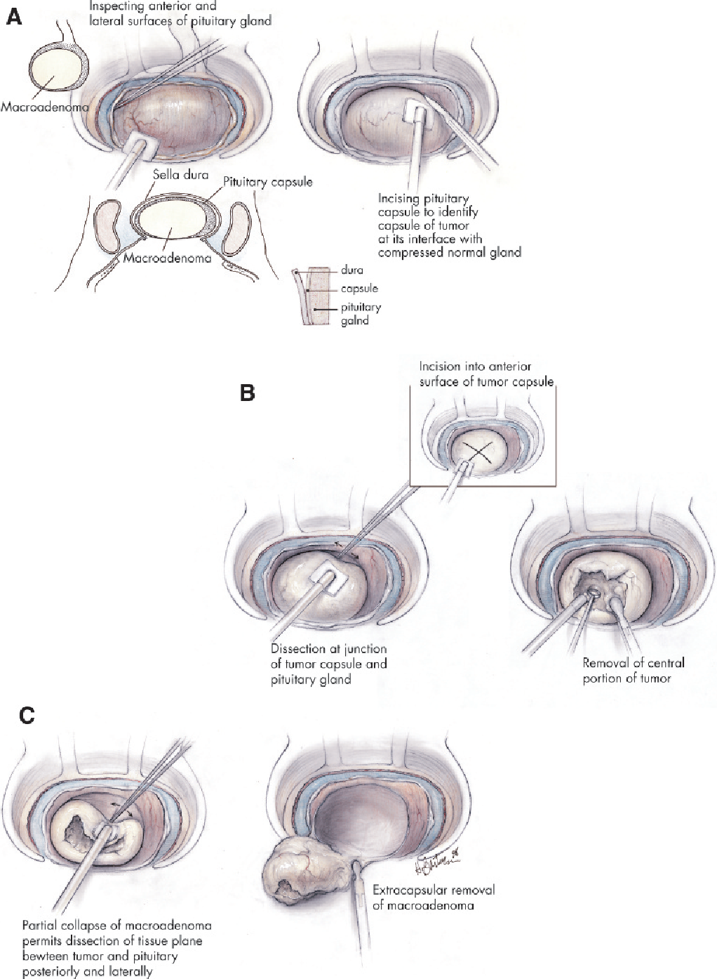 Figure 4 From Surgical Management Of Cushings Disease A Personal