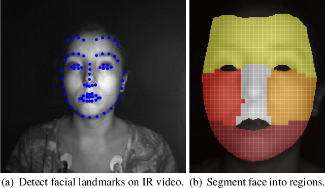 Figure 1 for Non-contact photoplethysmogram and instantaneous heart rate estimation from infrared face video