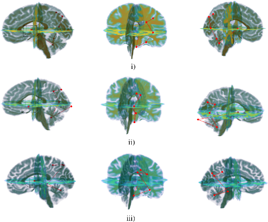 Figure 4 for NEURO-DRAM: a 3D recurrent visual attention model for interpretable neuroimaging classification