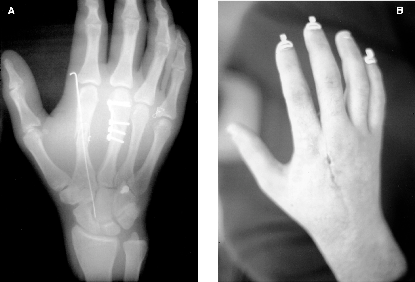 Fracture healing: bone healing, fracture management, and current concepts  related to the hand. - Semantic Scholar