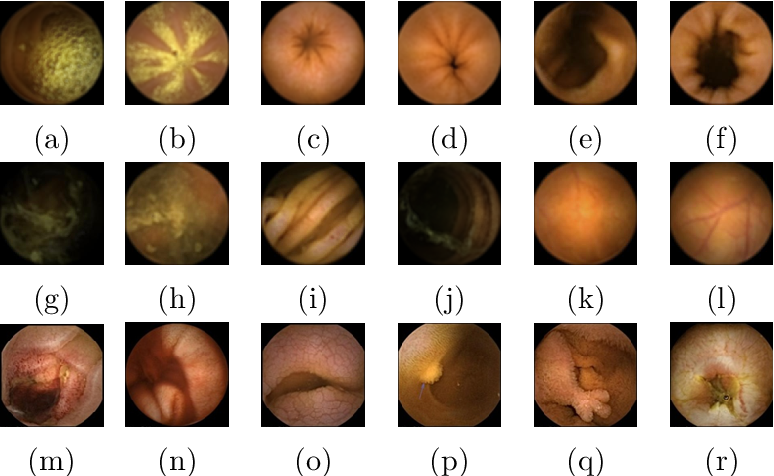 Figure 1 for Generic Feature Learning for Wireless Capsule Endoscopy Analysis