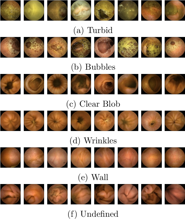 Figure 3 for Generic Feature Learning for Wireless Capsule Endoscopy Analysis