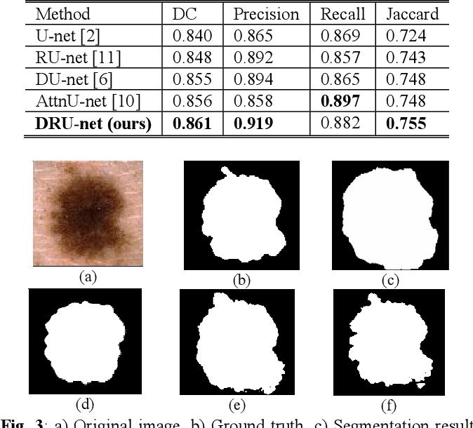 Figure 4 for DRU-net: An Efficient Deep Convolutional Neural Network for Medical Image Segmentation