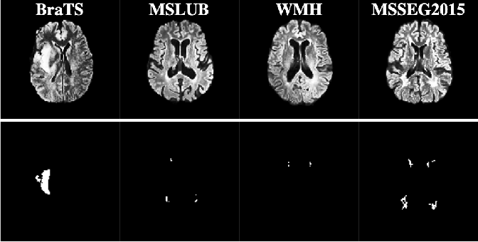 Figure 3 for Challenging Current Semi-Supervised Anomaly Segmentation Methods for Brain MRI