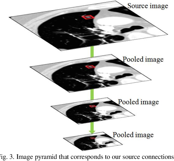 Figure 4 for PiaNet: A pyramid input augmented convolutional neural network for GGO detection in 3D lung CT scans