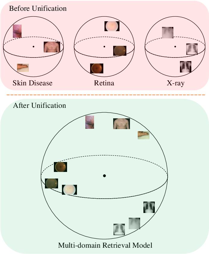 Figure 1 for Universal Model for Multi-Domain Medical Image Retrieval