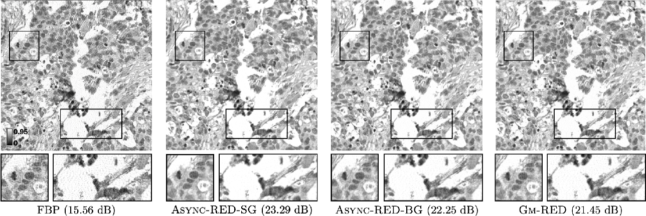 Figure 4 for Async-RED: A Provably Convergent Asynchronous Block Parallel Stochastic Method using Deep Denoising Priors
