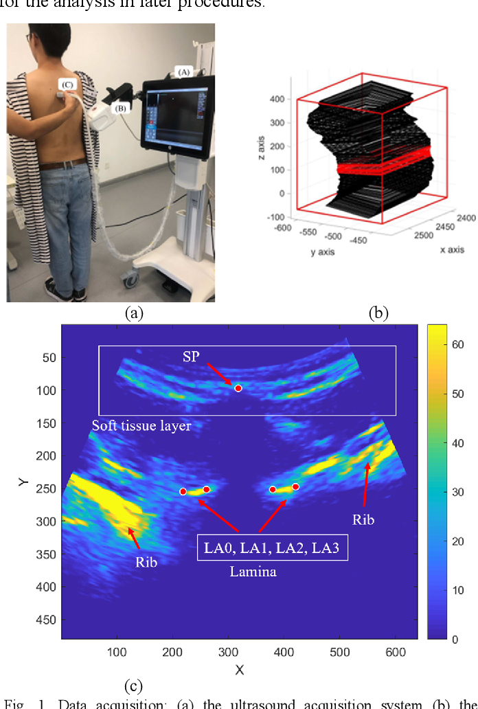 Figure 1 for Automatic segmentation of vertebral features on ultrasound spine images using Stacked Hourglass Network