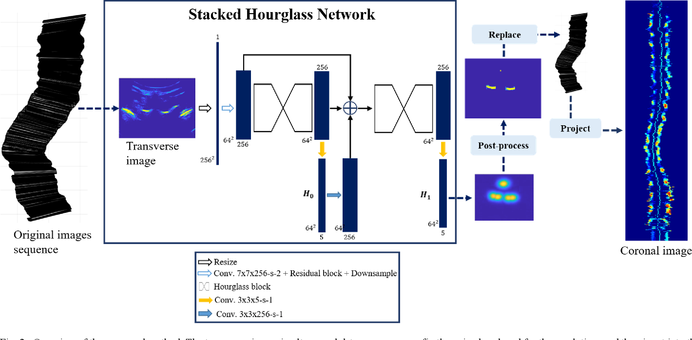 Figure 4 for Automatic segmentation of vertebral features on ultrasound spine images using Stacked Hourglass Network
