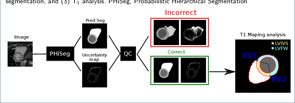 Figure 1 for Automated quantification of myocardial tissue characteristics from native T1 mapping using neural networks with Bayesian inference for uncertainty-based quality-control