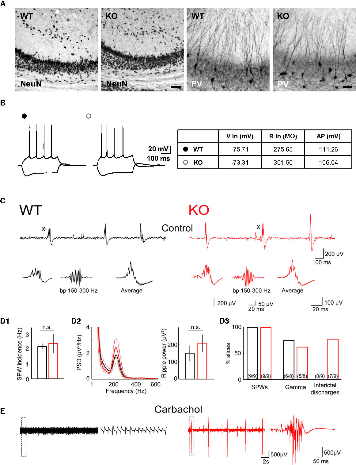 Figure 3. No Evident Structural Changes, but Pathological Network Properties in Hippocampal Slices