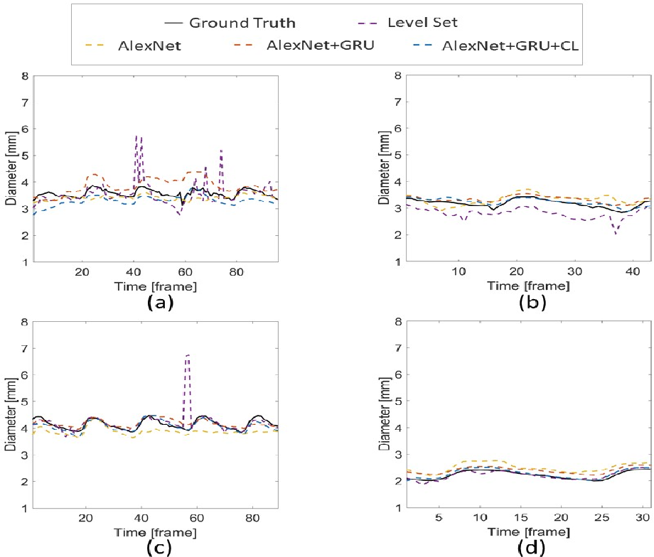 Figure 3 for Temporal Convolution Networks for Real-Time Abdominal Fetal Aorta Analysis with Ultrasound