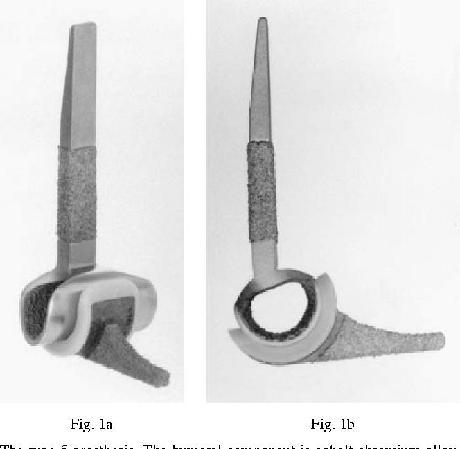 Fig. 1a Fig. 1b