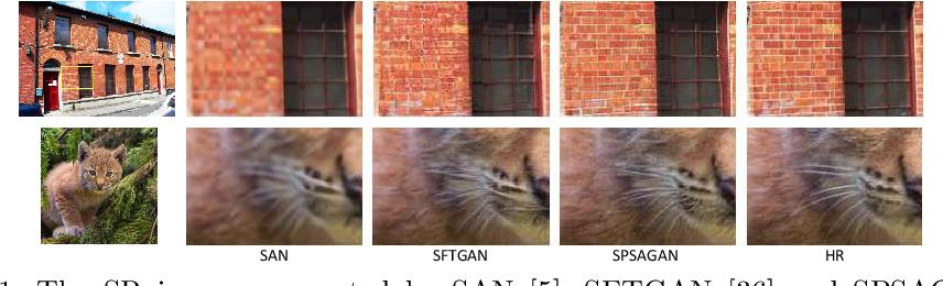 Figure 1 for Super Resolution Using Segmentation-Prior Self-Attention Generative Adversarial Network