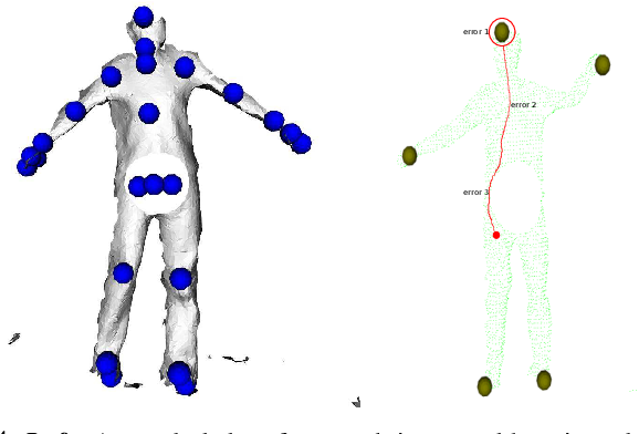 Figure 4 for Clinical Patient Tracking in the Presence of Transient and Permanent Occlusions via Geodesic Feature