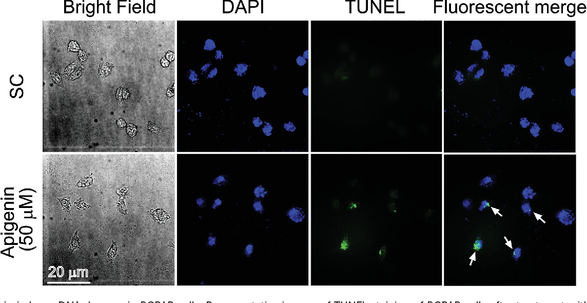 Fig. 4 Apigenin induces DNA damage in BCPAP cells. Representative images of TUNEL staining of BCPAP cells after treatment with the 50 μM of apigenin for 24 h. White arrows indicate TUNEL-positive nuclei.