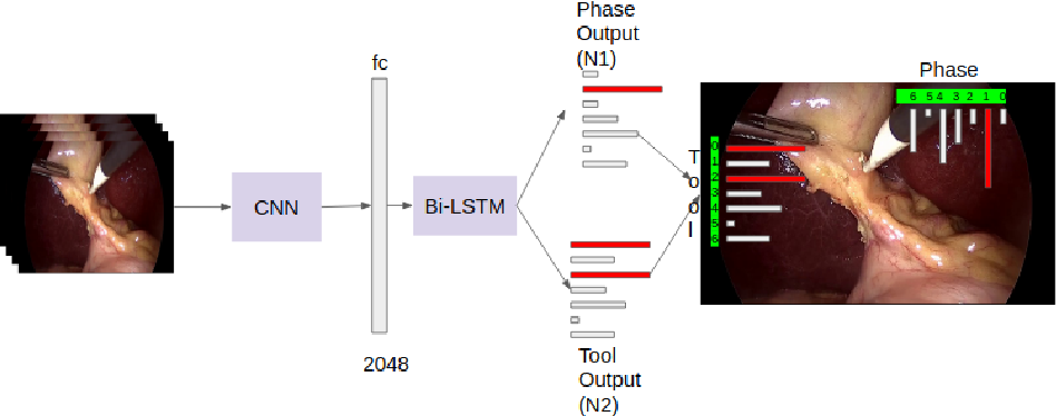 Figure 1 for Multitask Learning of Temporal Connectionism in Convolutional Networks using a Joint Distribution Loss Function to Simultaneously Identify Tools and Phase in Surgical Videos
